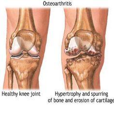 osteoarthritis - herbal remedies: ginger, turmeric, devil's claw, cat's claw (extract), boswellia (guggul - tablets), stinging nettle, capsaicin (cream/gel), willow bark (tea), hawthorn berries.. also veggies & fruits! :) Knee Arthritis, Types Of Arthritis, Rheumatoid Arthritis, Knee Osteoarthritis, Arthritis Relief, Juvenile Arthritis, Arthritis Remedies, Natural Treatments, Natural Cures