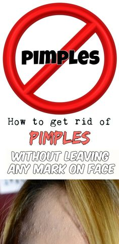 How to get rid of pimples without leaving any mark on face