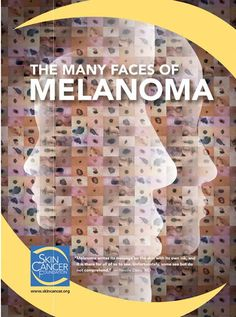 The Many Faces of Melanoma - The Skin Cancer Foundation Store