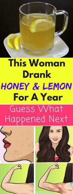 This Woman Drank Honey And Lemon For A Year, Guess What Happened Next