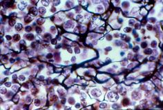 Reticular loose Connective Tissue Proper, found in the Lymphoid organs (lymph nodes, bone marrow, and spleen) Function: Fibers from a soft internal skeleton (stroma) that supports other cell types including white blood cells, mast cells and macrophages