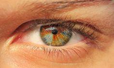 Sectoral heterochromia  Photo credit: Andrea Goercz