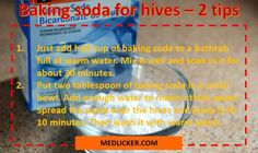 Find out how to get rid of hives with 13 drugs and 15 home remedies. Also learn about causes, symptoms and prevention of urticaria. Natural Remedies For Hives, Home Remedies For Hives, Hives Remedies, Skin Care Remedies, Health Remedies, Urticaria, Cold Treatment, Vitamins For Skin, Look Here