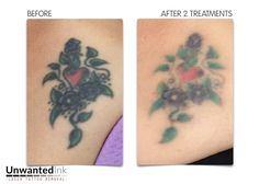 With so much dark ink in this little number the only option for a cover up was going to be bigger and blacker than this lovely client wanted. Two sessions of laser/LED light on the black ink and her options have increased exponentially!  Want to get results like this? Call 0422 540 773 for your free consultation or go to http://www.unwantedinktattooremoval.com/landing-page.html for your FREE Fade it Faster Guide