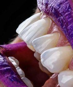 Teeth Names in Human Mouth (Types, Function, Dental treatments, Etc) Dental Surgery, Dental Implants, Dental Hygienist, Lente Dental, Dental Health, Dental Care, Oral Health, Dental Wallpaper, Dental Photos