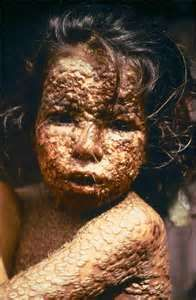 """March 12, 2013 - """"U.S. Govt is buying ..a new smallpox vaccine to treat 2 million people IN THE EVENT of a bioterriosm attack.  Smallpox WAS ERADICATED by 1980 & the only KNOWN REMAINING virus is in government labs in the U.S. & Russia..rumors of renegade stocks that could be used in a biological attack. Experts: VIRUS COULD also BE RE-ENGINEERED INTO EXISTENCE in a sophisticated GENETICS lab."""