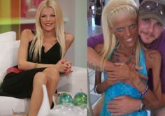 """SHOCKING: ANOREXIA TURNED HER INTO """"CREATURE"""" (VIDEO) How does one go from this to this?"""