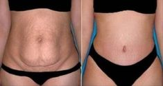 Intro L'excès de graisse du ventre est un véritable danger pour la santé et il peut causer de nombreux problèmes, y compris les problèmes cardiaques, l'hypertension, des troubles métaboliques, l'asthme, la maladie d'Alzheimer, l'athérosclérose, la diminution de la fertilité et des problèmes avec les organes reproducteurs chez les mâles et les femelles. Si …