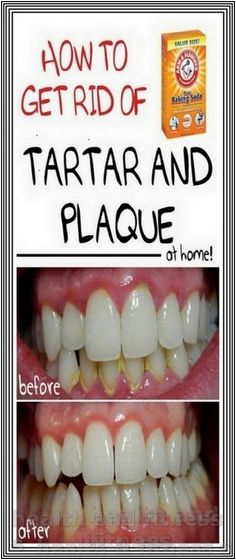 How to Naturally Remove Plaque and Tartar from Teeth | 234 health and fitness