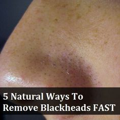 Don't waste money at the pharmacy on blackhead creams and strips, instead, find out how to get rid of blackheads fast with these 15 blackhead home remedies
