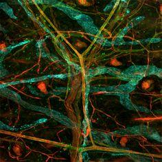 Rodrigo Dieguez, A colored map of the vascular network (Un mapa en color de la red vascular).
