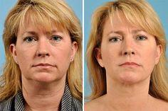 cirurgia plastica na papada 6