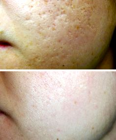 Acne Scars Sublative Treatment