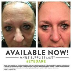 What are your #WOW results going to look like? #skincare