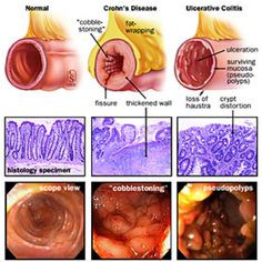 Ulcerative Colitis and Crohn's Disease
