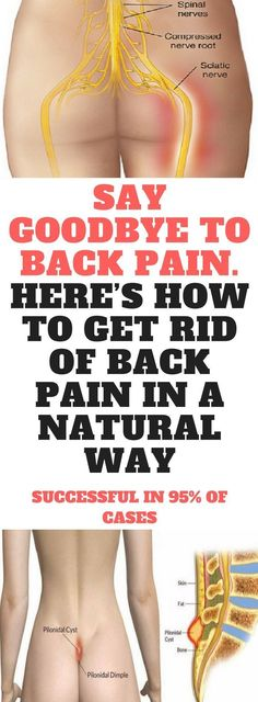 SAY GOODBYE TO BACK PAIN. HERE'S HOW TO GET RID OF BACK PAIN IN A NATURAL WAY. SUCCESSFUL IN 95% OF CASES!! #GetRidOfBackPain