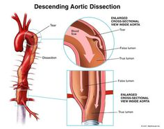 Dissection.jpg (425×335)