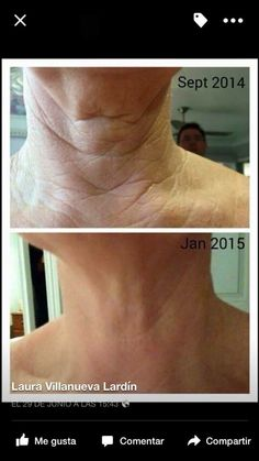 Skincerity Nu Skin, Life Is Beautiful, You Got This, How To Get, Skin Care, Health, Face, Sleep, Bottle