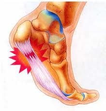 Arch Pain Symptoms Arch Pain Symptoms or Plantar fasciitis may be caused by : Surge in activity, Feet structure : high curved foot or perhaps a flat base, Unsupportive footwear, Going for walks or located on hard floors, Weight gain.
