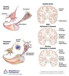pathology of alzheimer's disease - Google Search
