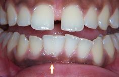 Tooth gemination is also known as tooth twinning.