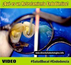 retratamiento-endodontico