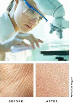 Dermacort Skin Cream Offer