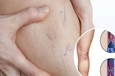 Natural Remedies Varicose Veins Spider and Varicose Veins - Spider and varicose veins usually occur in women after pregnancy or after the age of They represent very common problems. Here are few steps. Varicose Vein Remedy, Varicose Veins, Pimples Remedies, Headache Remedies, Natural Treatments, Natural Remedies, Home Treatment, Love Natural, Health Remedies