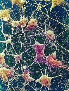 Nerve cells, SEM