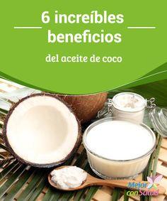6 increíbles beneficios del aceite de coco  Seguramente debes estar familiarizado con el delicioso sabor y olor a coco cuando lo consumes bien sea crudo o cocido.