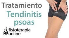 Tendinitis del psoas o psoitis. Tratamiento con ejercicios, auto masajes...