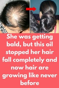 She was getting bald, but this oil stopped her hair fall completely and now hair are growing like never before Hair baldness is very common these days, main reason behind this is our unhealthy diet and streusel life style. Hair Remedies For Growth, Hair Growth Treatment, Hair Growth Tips, Hair Loss Remedies, Hair Thickening Remedies, Bald Hair Growth, Healthy Hair Remedies, Healthy Hair Growth, Stop Hair Loss