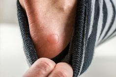 How To Prevent And Treat Foot Blisters On The Trail - Cool Hiking Gear