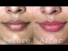 How to Lighten Dark Lips Naturally - Rapid Home Remedies - YouTube