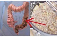 La morte comincia nel colon. Lo diceva Ippocrate. E la scienza moderna ha dimostrato che aveva ragione. Moltissime persone in tutto il mondo hanno problemi intestinali, legati alla salute del colon. Mentre alcuni dei problemi sono relativamente minori come l'acne, la sonnolenza e il mal di testa, molti altri sono molto più gravi. Tra le tante patologie: reflusso acido; colite; costipazione; morbo di Crohn; sindrome dell'intestino irritabile. Inoltre i problemi legati al colon, spess...