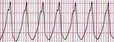 What is Abnormal Heart Rhythm?  Abnormal heart rhythm or irregular heartbeats are known as arrhythmia. This is not to be confused with a heart rate as both of them are different things. A normal heart rate consists of about fifty to a hundred beats per minute whereas arrhythmia can occur with a normal, a slow or even a fast heart rate.