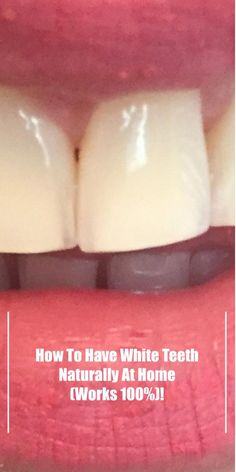 How To Have White Teeth Naturally At Home (Works – Go Natural Cures Calcium Rich Foods, Stained Teeth, Best Oral, White Teeth, Oral Hygiene, Natural Cures, Natural Medicine, It Works