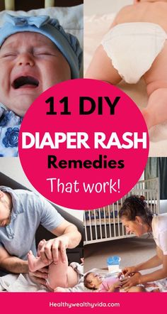 Looking For Extreme Diaper Rash Remedies? These natural ingredients will help soothe and heal diaper rash fast on your newborn, baby, or toddler! Diy Diapers, Newborn Diapers, Free Diapers, Diaper Babies, Natural Diaper Rash Remedies, Diaper Rash Remedy, Bad Diaper Rash, Baby Boy Tips, Bebe