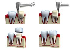 REASONS FOR VISITING DENTIST: Dental Retreatment (part 2): Crowns and Bridge
