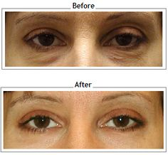 Blepharoplasty Before and After | eyelid-surgery-before ...