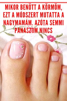 The Cure, Skin Care, Nails, Healthy, Dementia, Bridge Pattern, Finger Nails, Ongles, Skincare