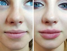 grander Lip Fillers Guide: Type of Lip Injections, Costs, and Side Effects Lip Fillers Lip Injections Cost, Collagen Lips, Lip Implants, Lip Augmentation, Lip Fillers Cost, Hyaluronic Acid Lips, Aesthetic Dermatology, Lip Shapes