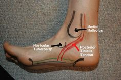 Some great surface anatomy of the foot in this post and some nice suggestions to help with your foot pain