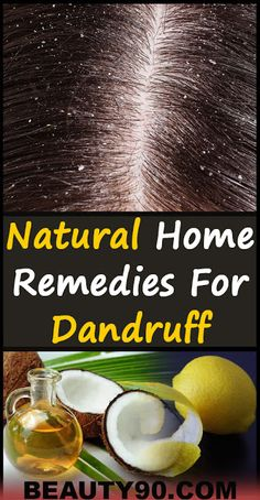 Natural Home Remedies For Dandruff - Beauty 90 Natural Teething Remedies, Natural Cough Remedies, Natural Health Remedies, Natural Cures, Herbal Remedies, Home Remedies For Dandruff, Health Tips, Health Benefits, Health Care