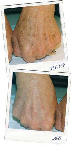 Net als bij pigmentvlekken kunnen bij het ouder worden naar verloop van tijd vlekken op de huid ontstaan. Gelukkig zijn deze uitstekend te behandelen.  We behandelen ouderdomsvlekken met onze nieuwste en meest geavanceerde TSR PRO ND YAG 3 laser. De vlekken (en niet de huid) vangen de thermische energie op die de laser levert. Daardoor zullen ze uitdrogen, minder worden en na een kleine week (grotendeels) verdwijnen.