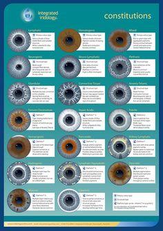 Integrated Iridology Constitution Chart | Integrated Iridology