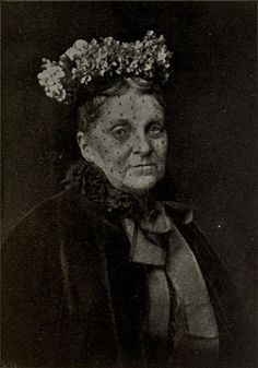 "Hetty Green aka ""The Witch of Wall Street"" was both the richest woman of the early 20th century (roughly 3.5 Billion in today's dollars) and also the stingiest. She was so miserly she refused to pay for her son's medical care and he ended up having his leg amputated as a result.  She lived on crackers and cheap pies. She never had her clothes cleaned and lived in squalor. She could have helped out so many during the Great Depression yet, she lived as they did."