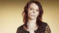 Como recuperé mi confianza tras perder mi rostro  - BBC mundo