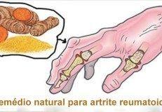 Artigo Os 5 melhores remédios naturais para artrite reumatoide!