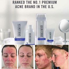 UNBLEMISH | pinterest.com/ekrodanfields - WHAT IS THE DIFFERENCE BETWEEN PROACTIV AND UNBLEMISH?Yes, they were created by the same two Stanford trained dermatologists Dr. Rodan and Dr. Fields!✔Proactiv is salicylic acid based. It was created primarily with teenagers in mind, knowing that most teenagers do not wash their face daily, and therefore would not use the product consistently.✔UNBLEMISH is sulfur based. This Multi-Med product is gentle, formulated to be used twice daily, with a…